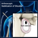Shoulder Stabilization